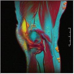 Knee MRI 0025 16 pdfs t1 t2 59f.jpg