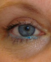 gezwollen ooglid boven