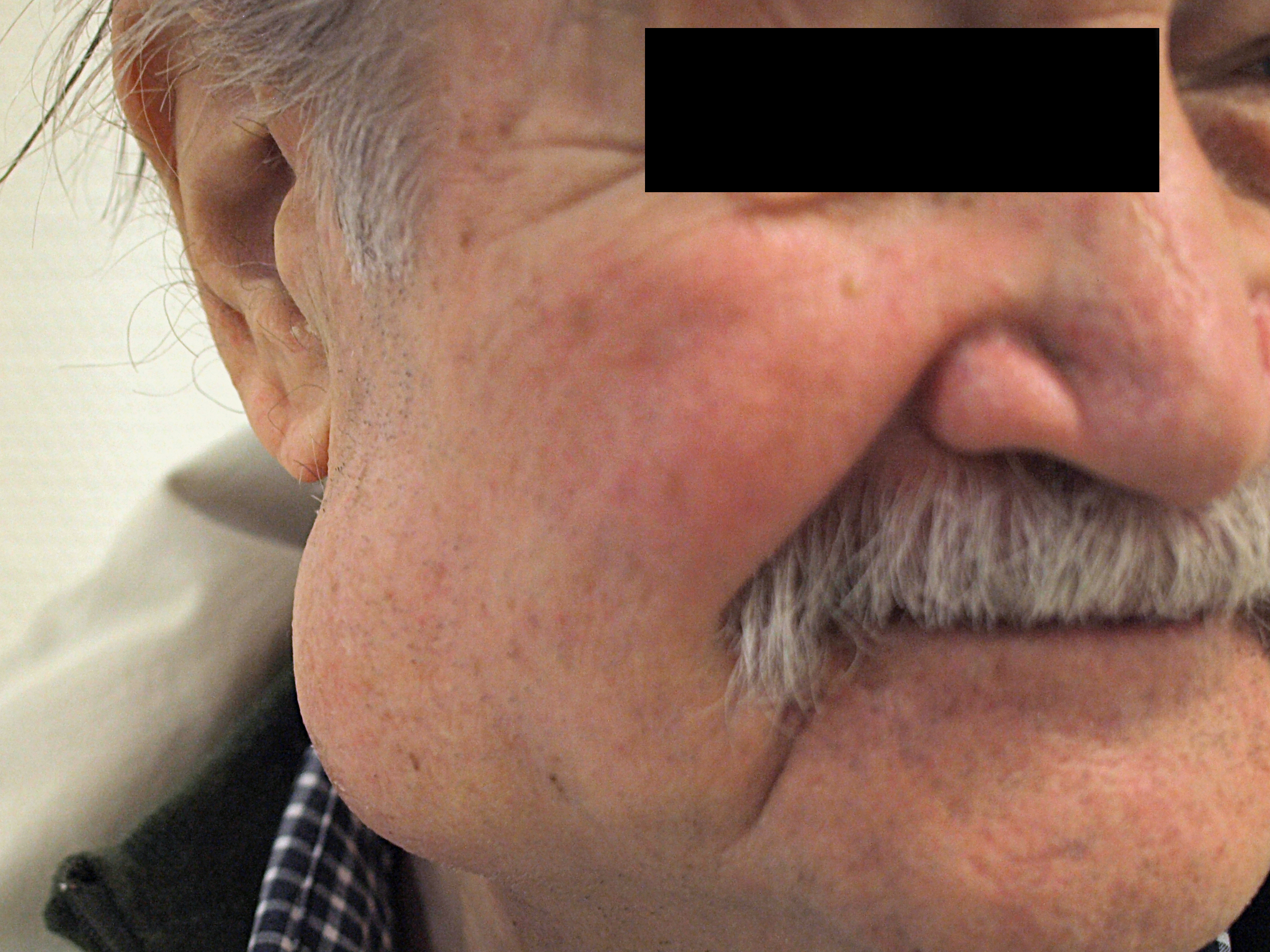 No diagnóstico diferencial de palato inchaço