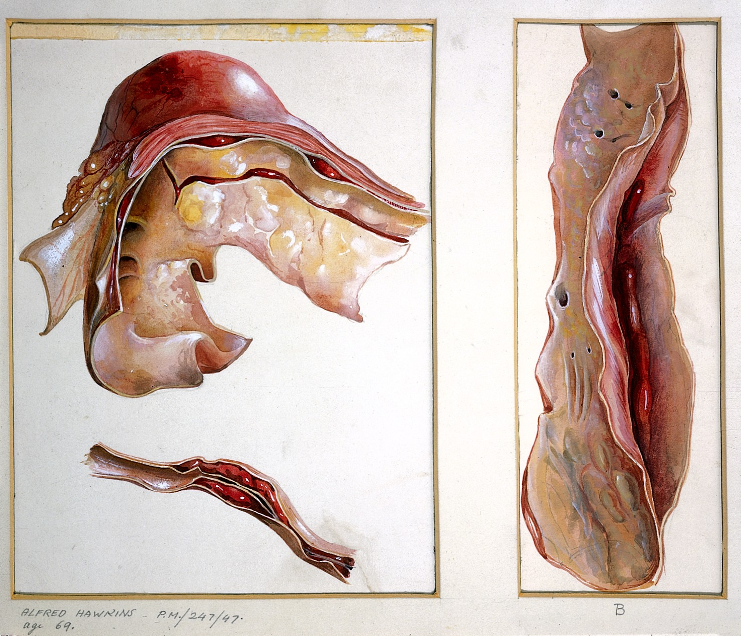 File:Pathological Anatomy; three sections of an aneurysm Wellcome ...