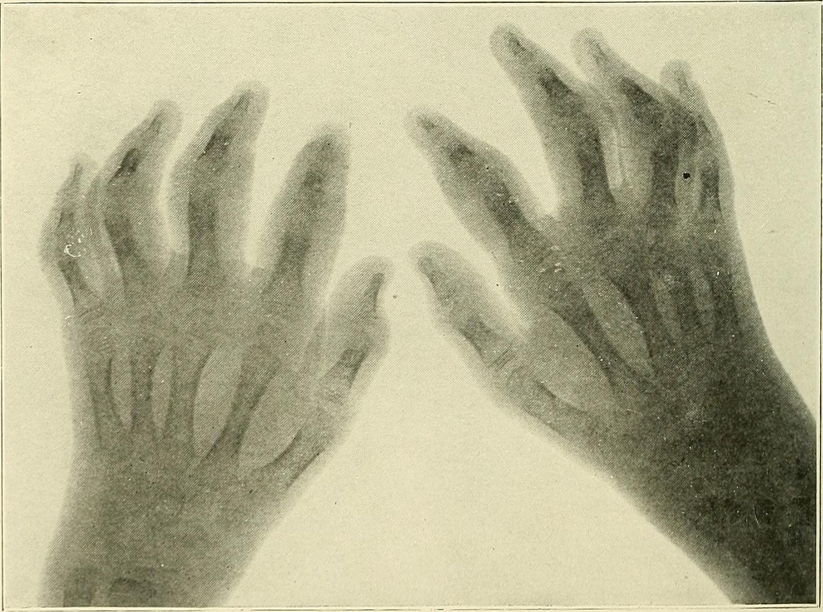 artritis infecciosa emedicina diabetes