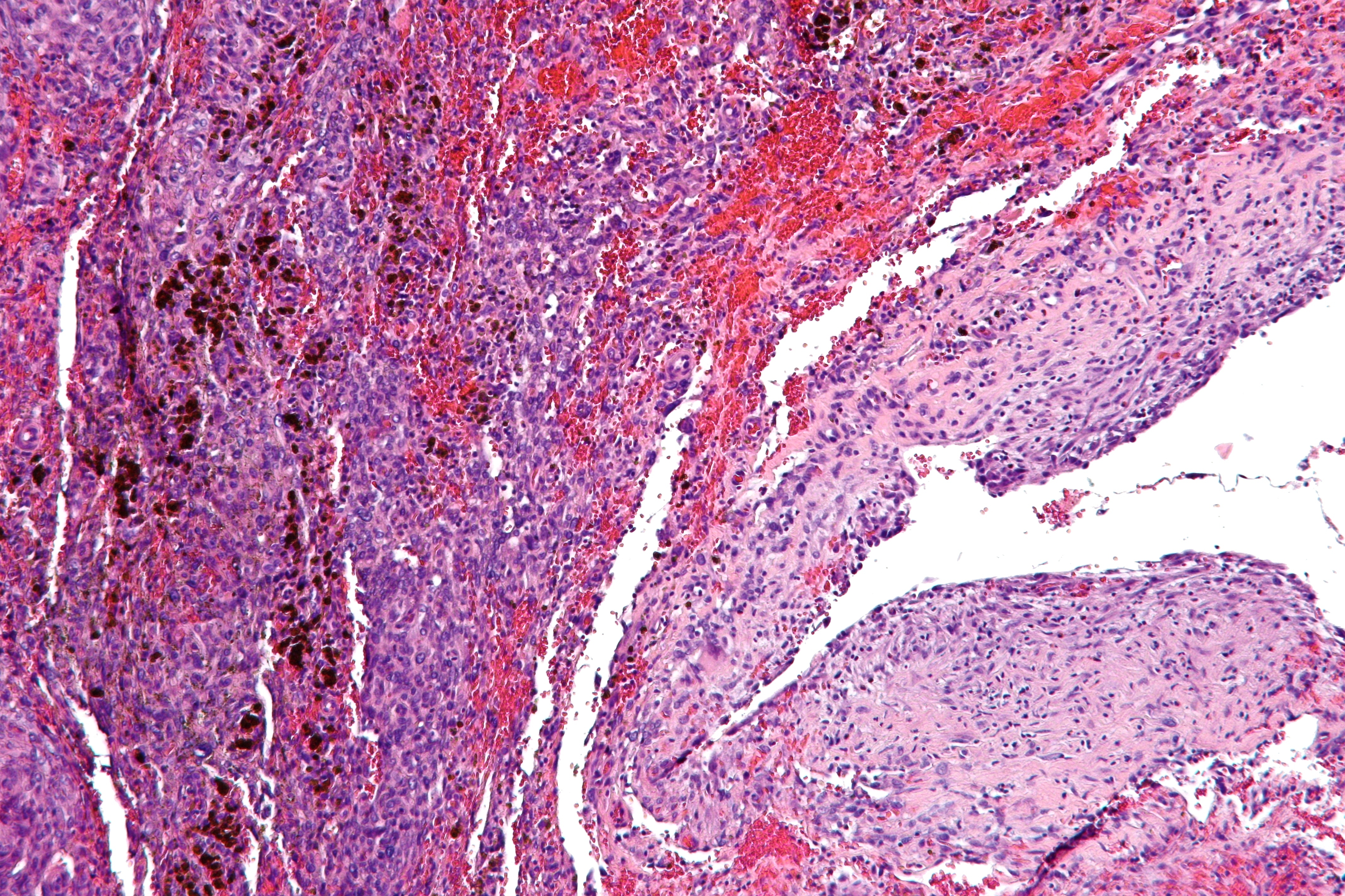 What Is a Malignant Neoplasm What Is a Malignant Neoplasm new pics