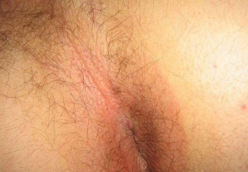 Atk erotic pictures