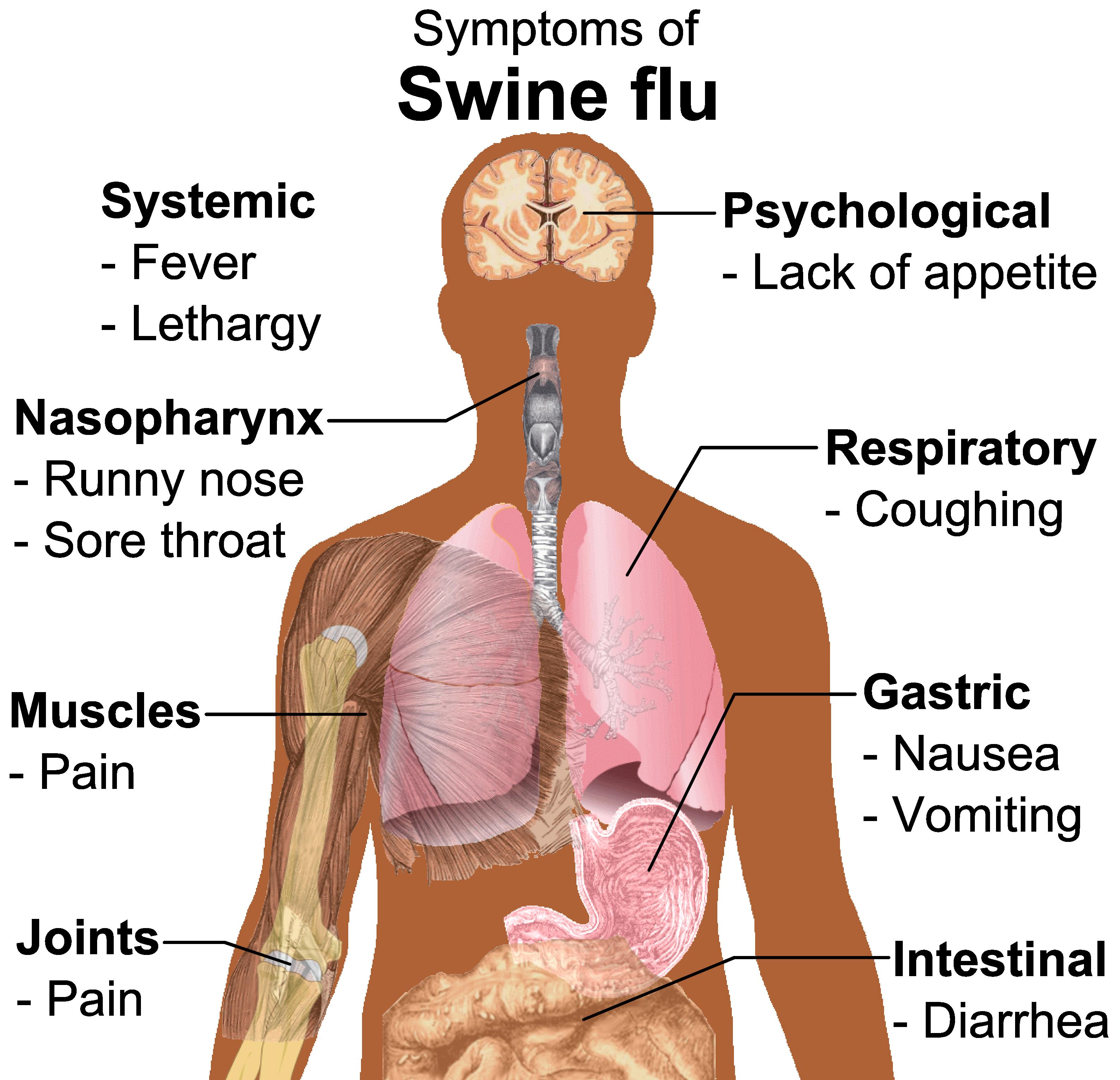 Symptoms_of_swine_flu.png