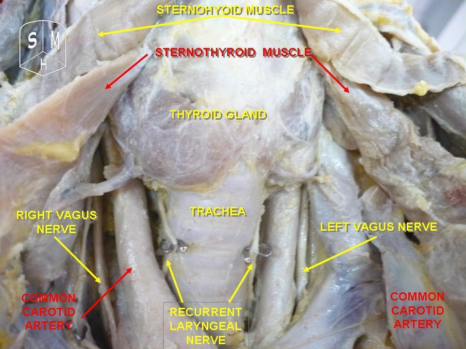 Filethyroid Glandg Wikimedia Commons