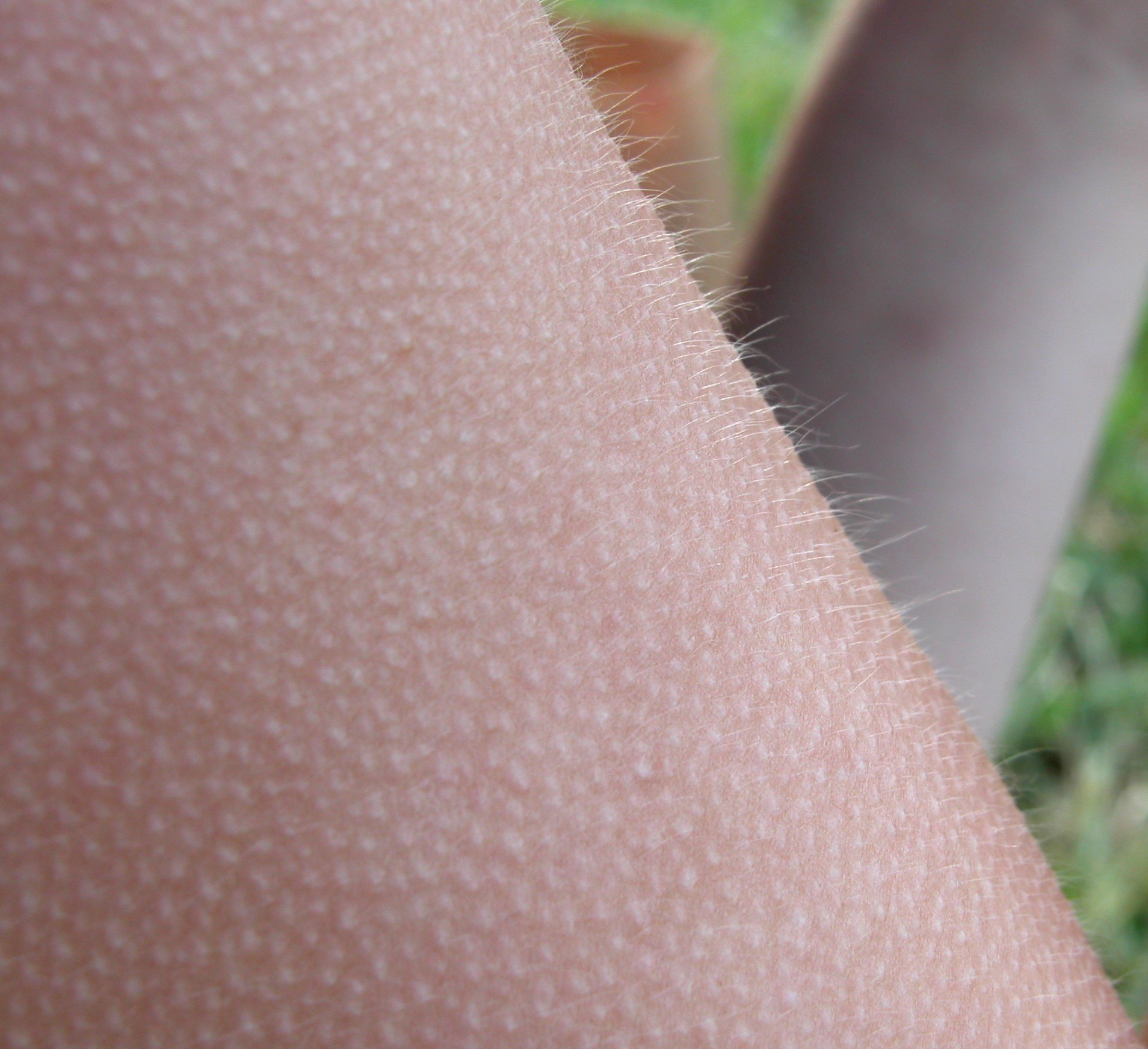 Goose bumps - Wikipedia