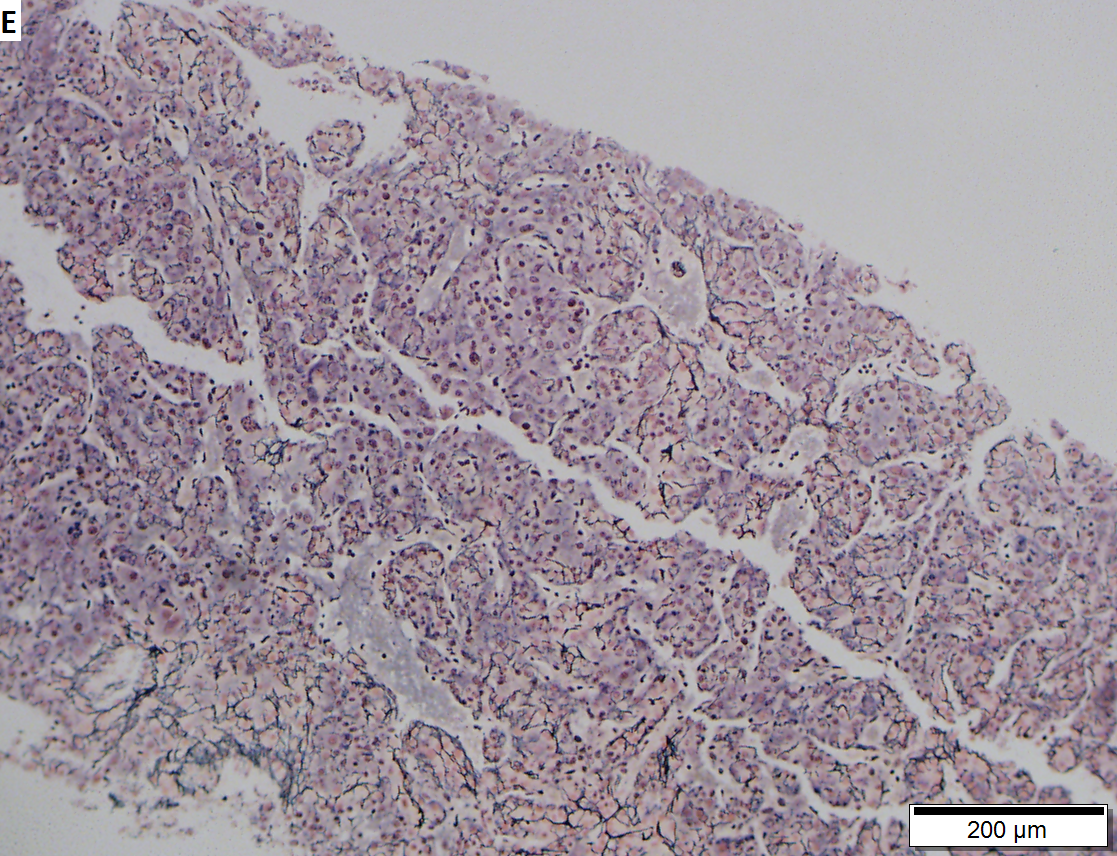 Hepatocellular carcinoma arising in cirrhosis
