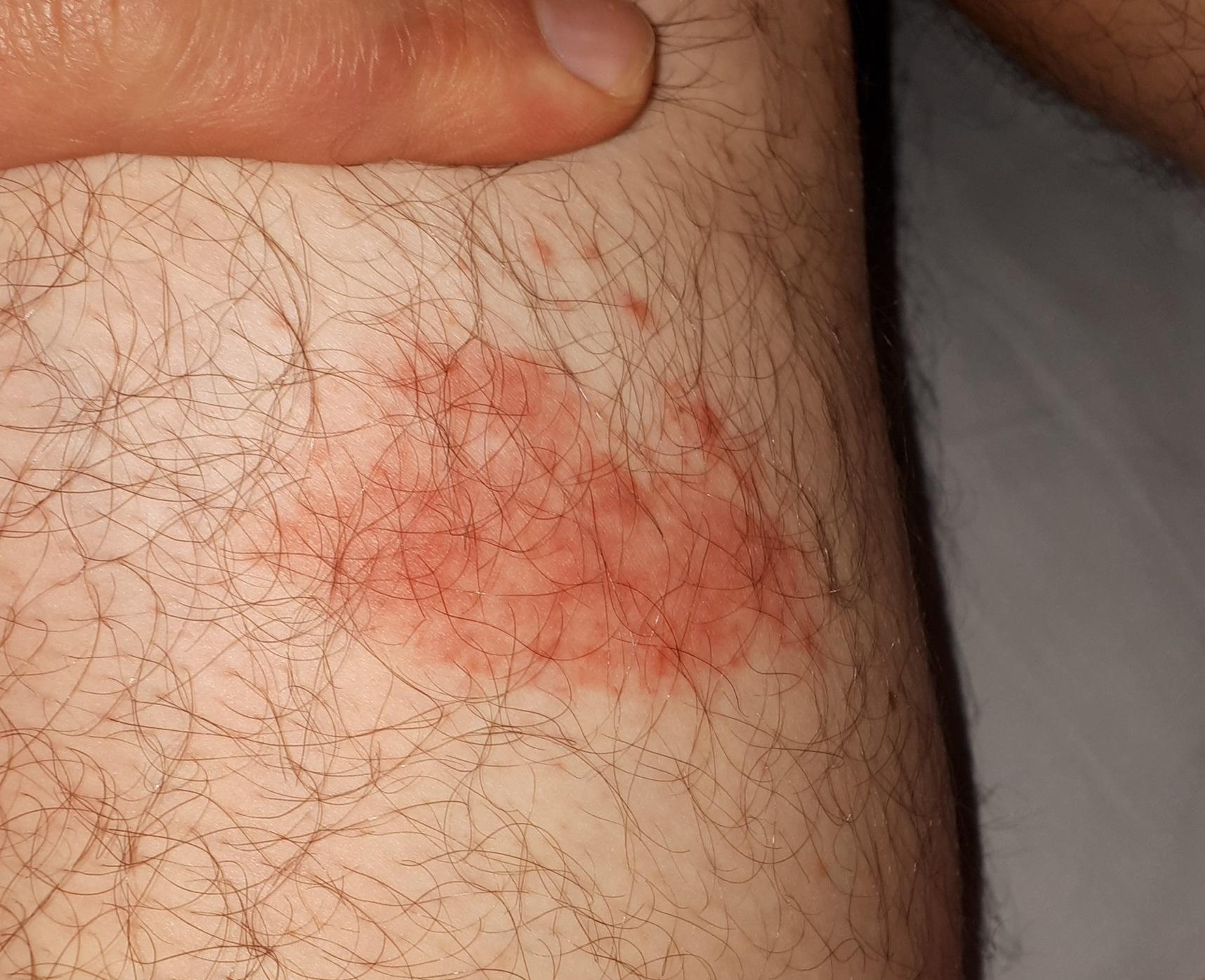 Image Result For Lyme Disease