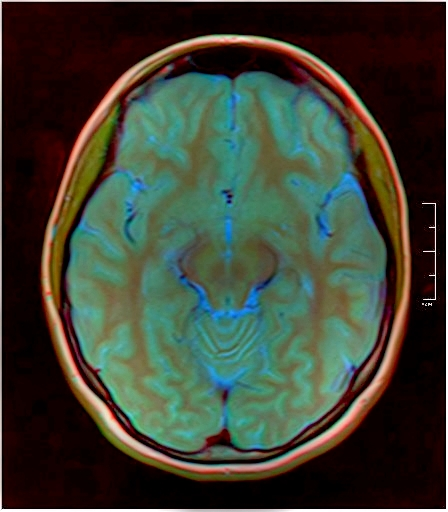 Color Brain MRI 0284 12.jpg