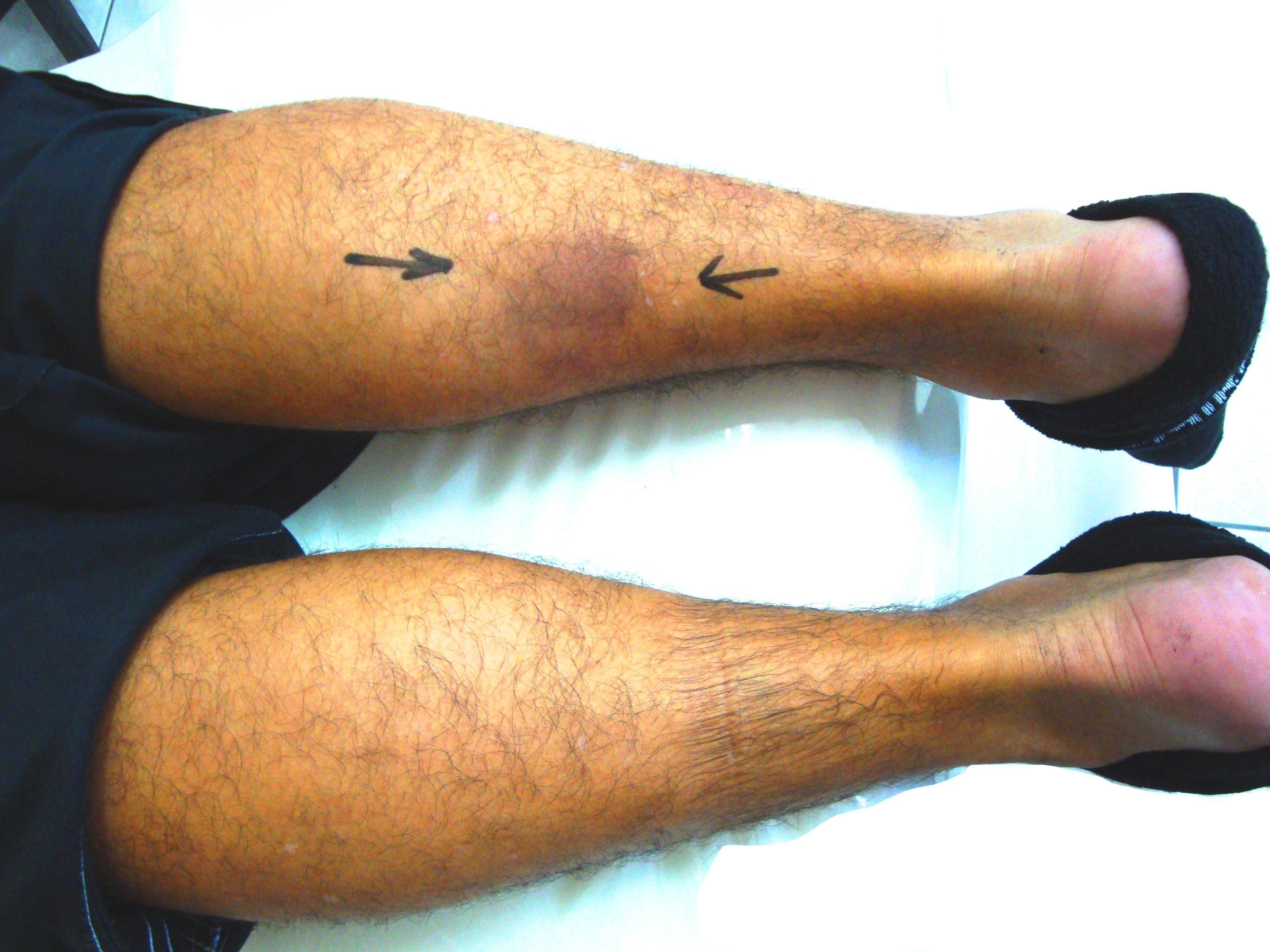 File Gastrocnemius Muscle Rupture Jpg