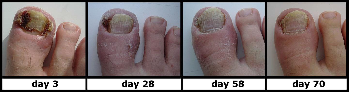 ... Toenail Moreover Really Gross Ingrown Toenail Along With Ingrown Toe