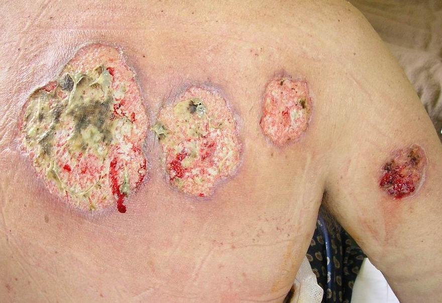 pyoderma gangrenosum bilder