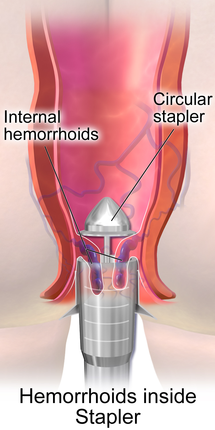 How is an operation to remove hemorrhoids