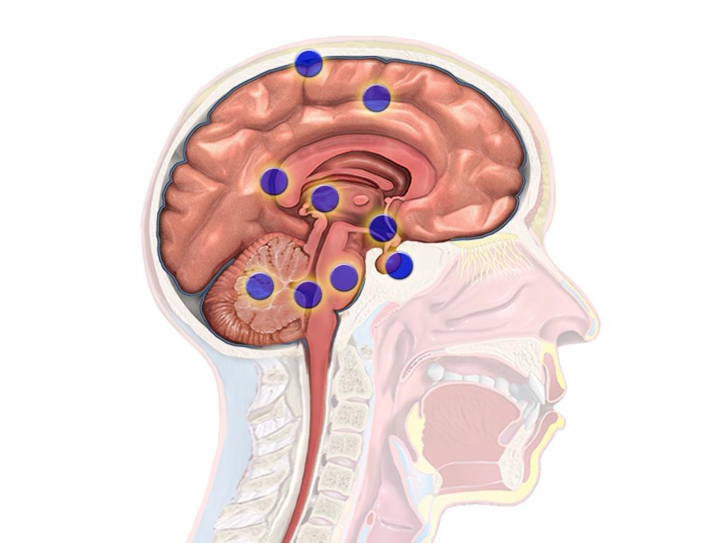Brain Tumor Adults 84