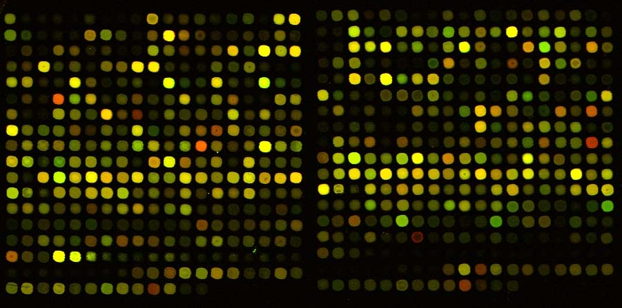 Output from a cDNA microarray used in testing
