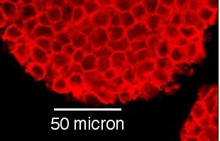 Cellule di topo coltivate su piastra. Le cellule, che si dispongono in masse compatte, presentano tutte un diametro uniforme e non superiore a 10 micron