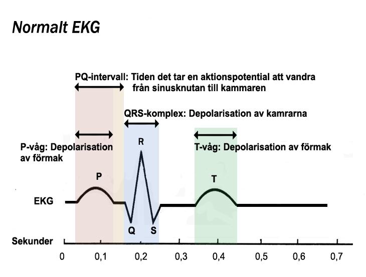 File Ekg Jpg