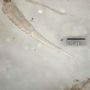 Pinworm Parasite Wikipedia