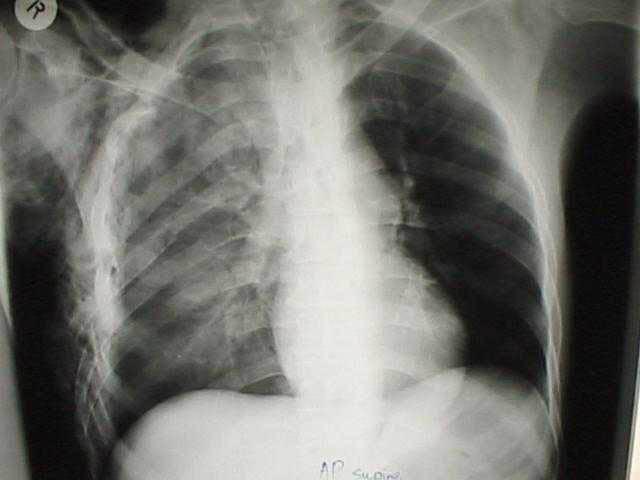 Pulmonary Contusion Chest X-ray