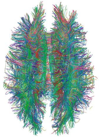 Conexiones de materia blanca obtenidas con tractografía MRI