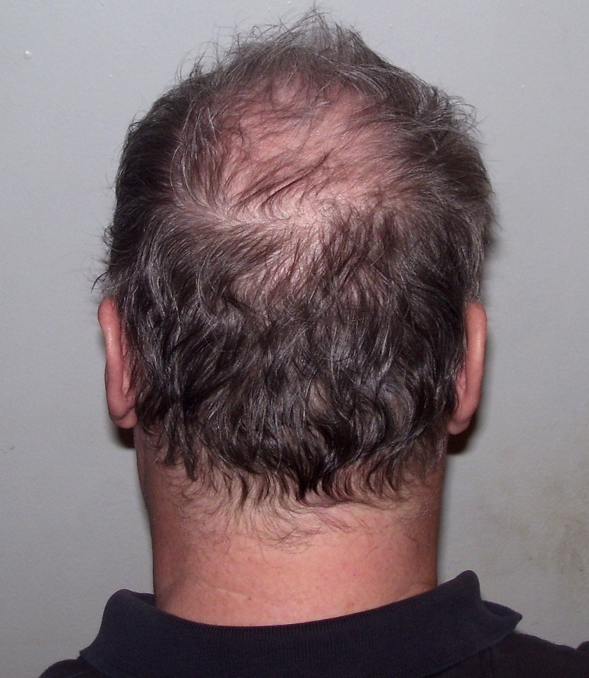 Image result for Primrose Oil To Cure Hair Loss?