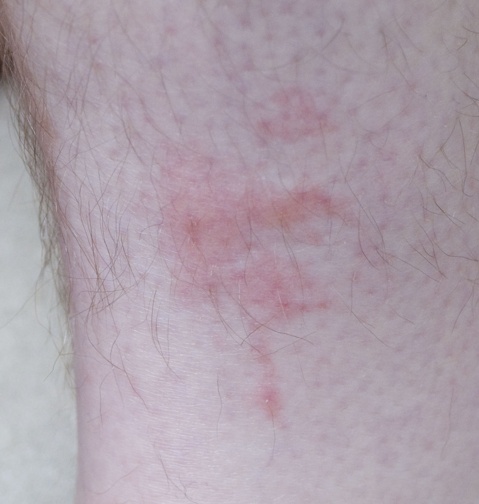 File:Bedbug bites on human leg 1.jpg