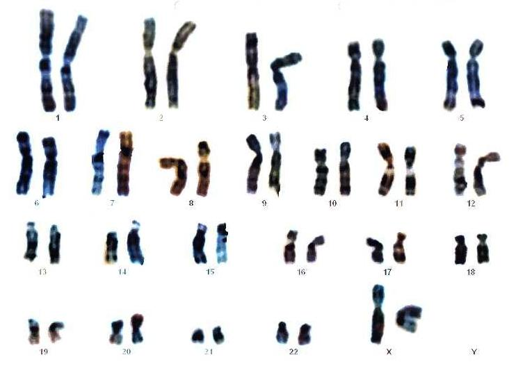 Файл:Mapa genético o cariograma.jpeg