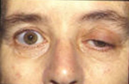 термобелье ботокс при эндокринной офтальмопатии влага пот оказываются