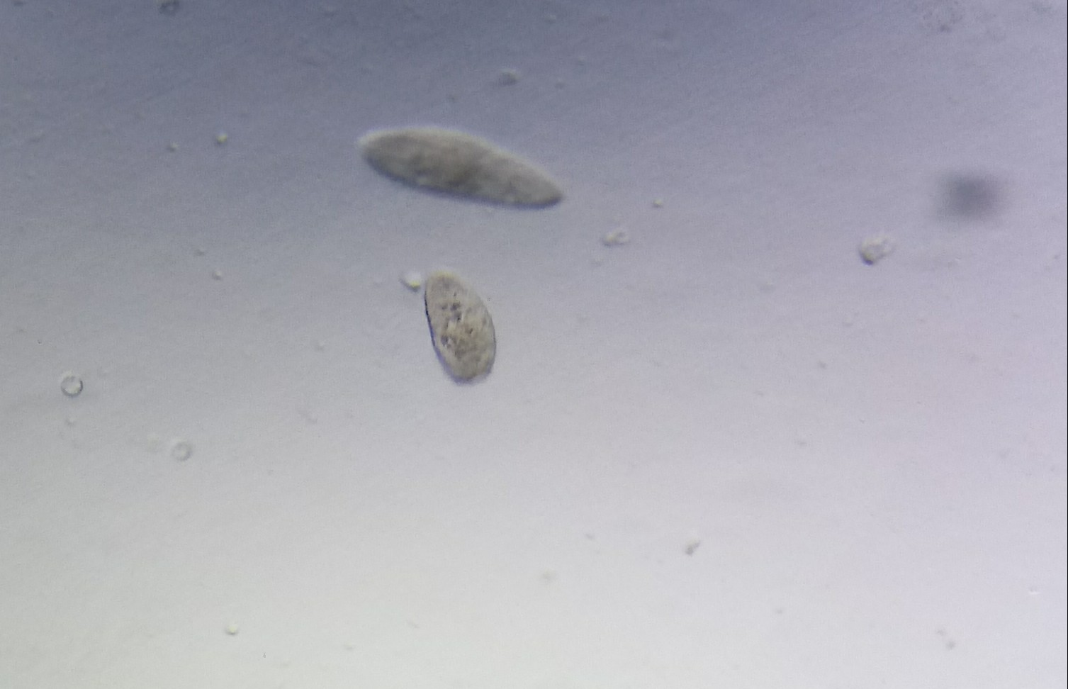 Describe asexual reproduction in paramecium aurelia