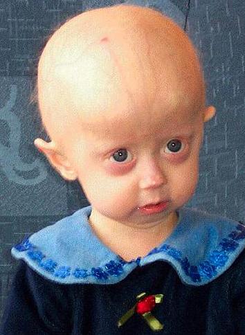 Niño con progeria. Fuente Wikipedia.