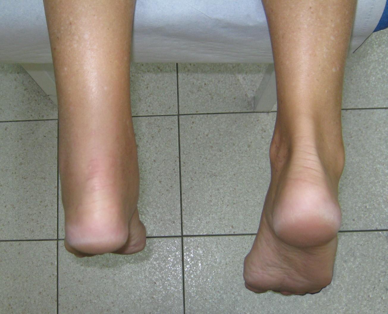 Lesión del Aquiles