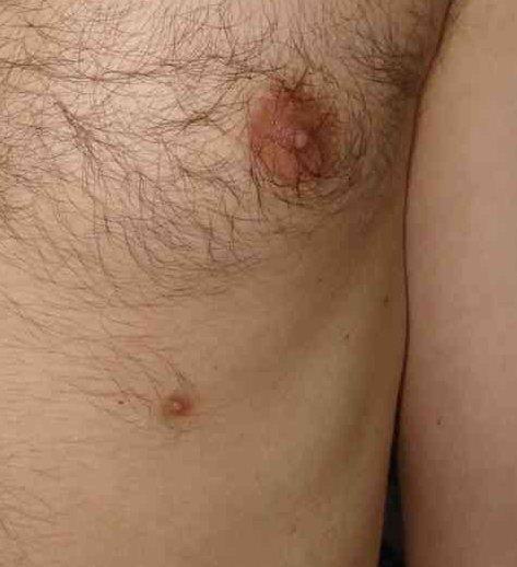 Supernumerary nipple | DermNet New Zealand
