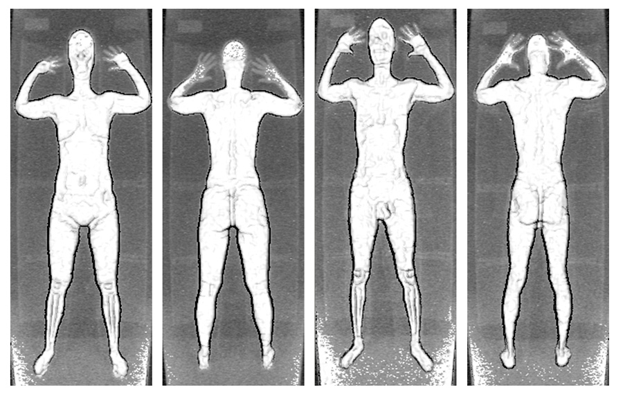 Backscatter X-ray - Wikipedia