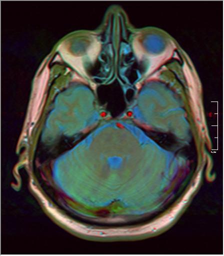 Brain MRI 293 15.png