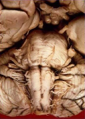Neuroanatomie: Hirnnerven – Wikibooks, Sammlung freier Lehr-, Sach ...