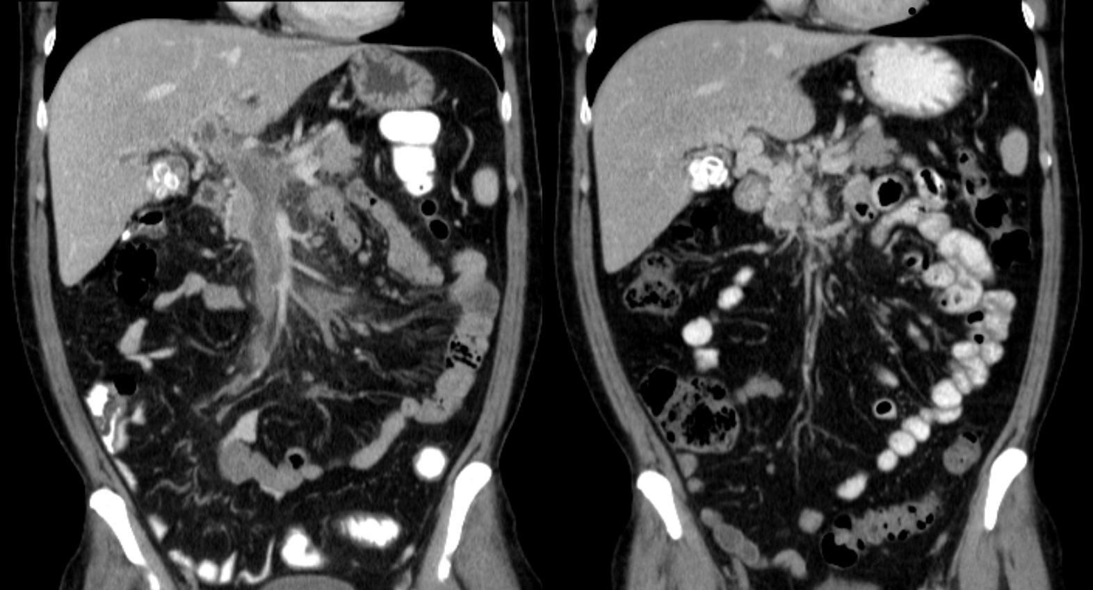 dvt emedicine - xarelto and angina, Cephalic Vein