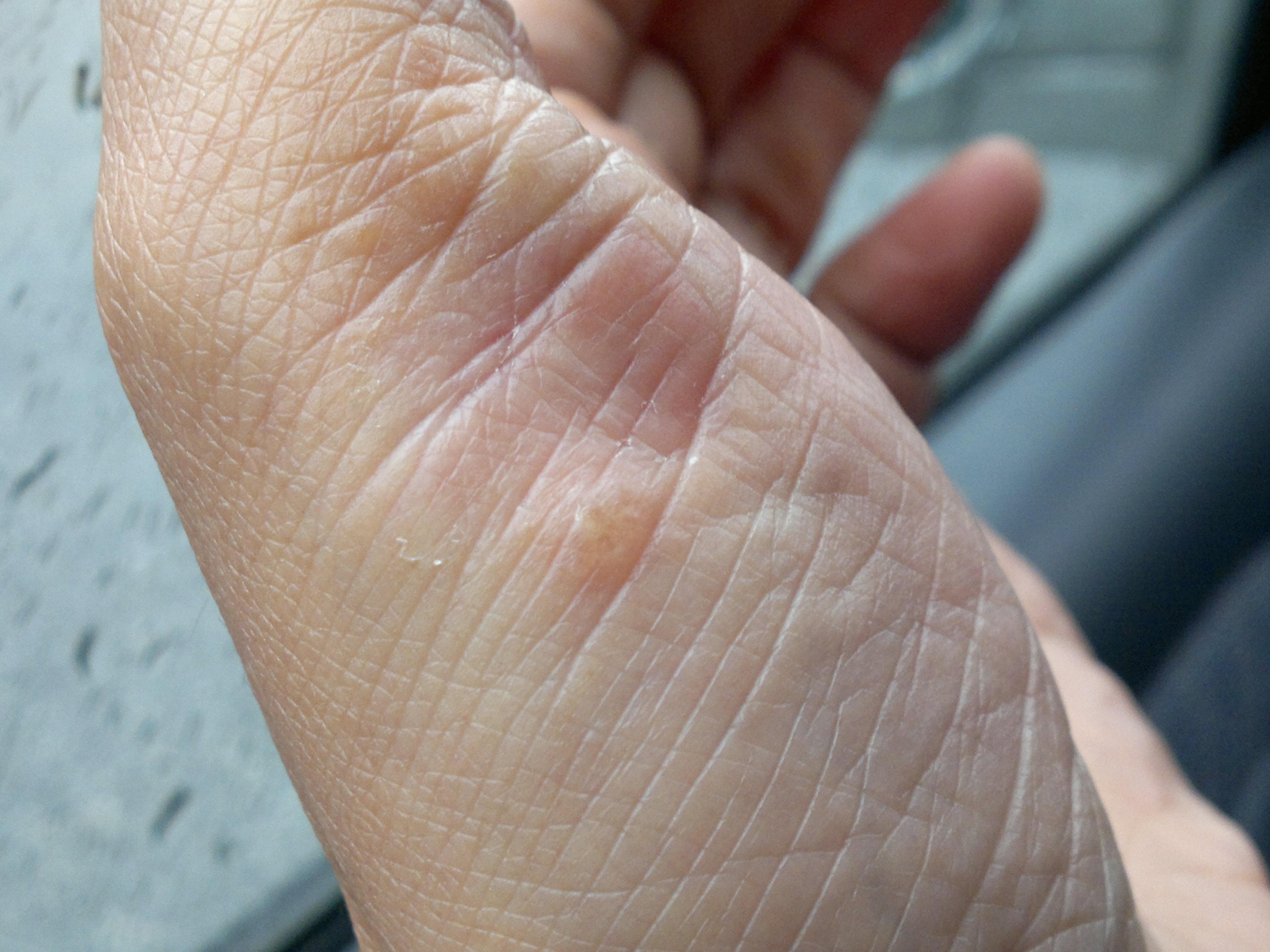 palmoplantar pustulosis icd 10