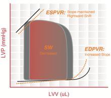 Pressure ndash volume loop analysis in cardiology Wikipedia