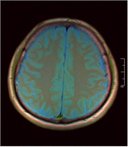 Brain MRI 0081 05.jpg