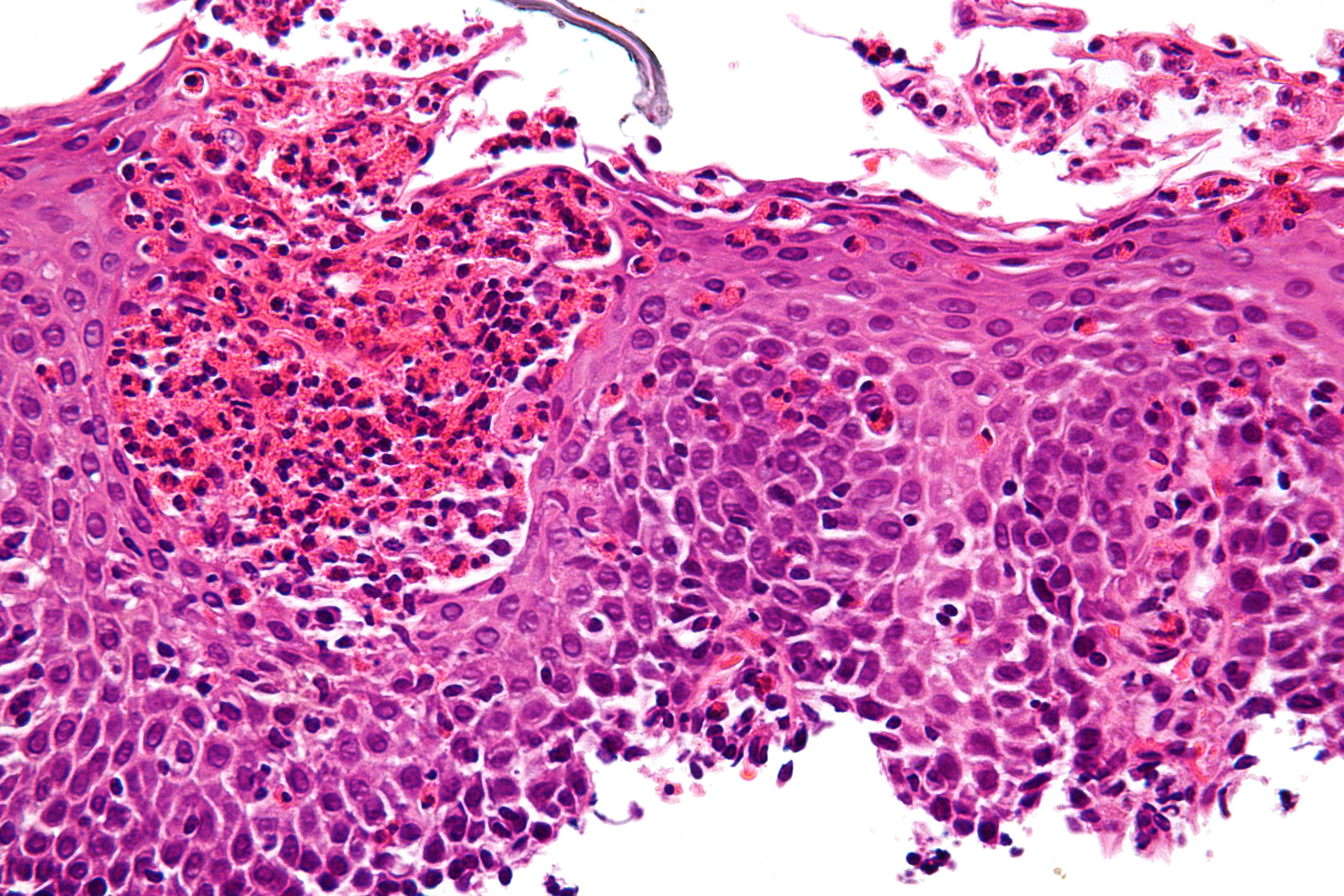 Eosinophilic Esophagitis Wikipedia