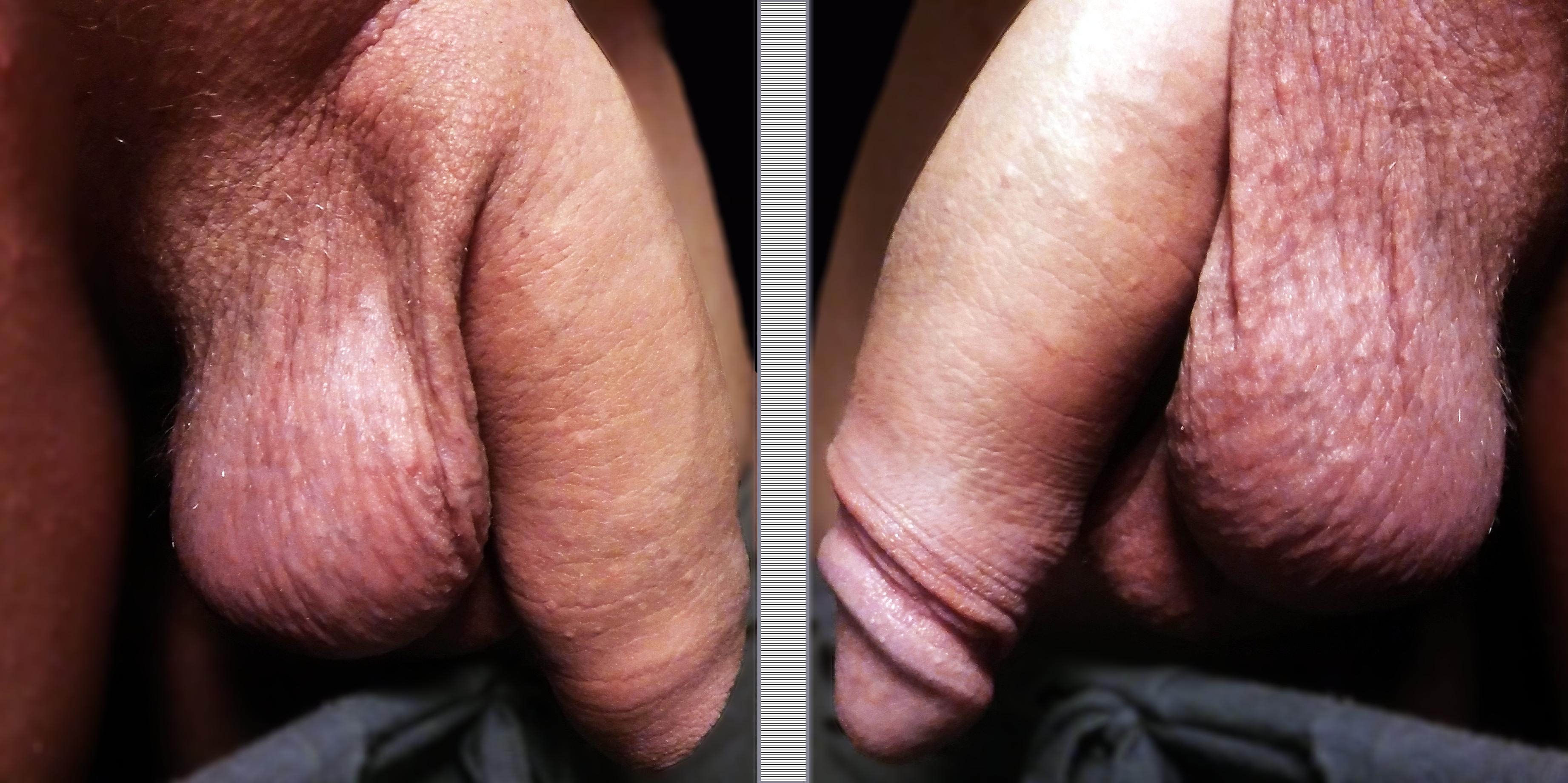 Uncircumcised penis pic