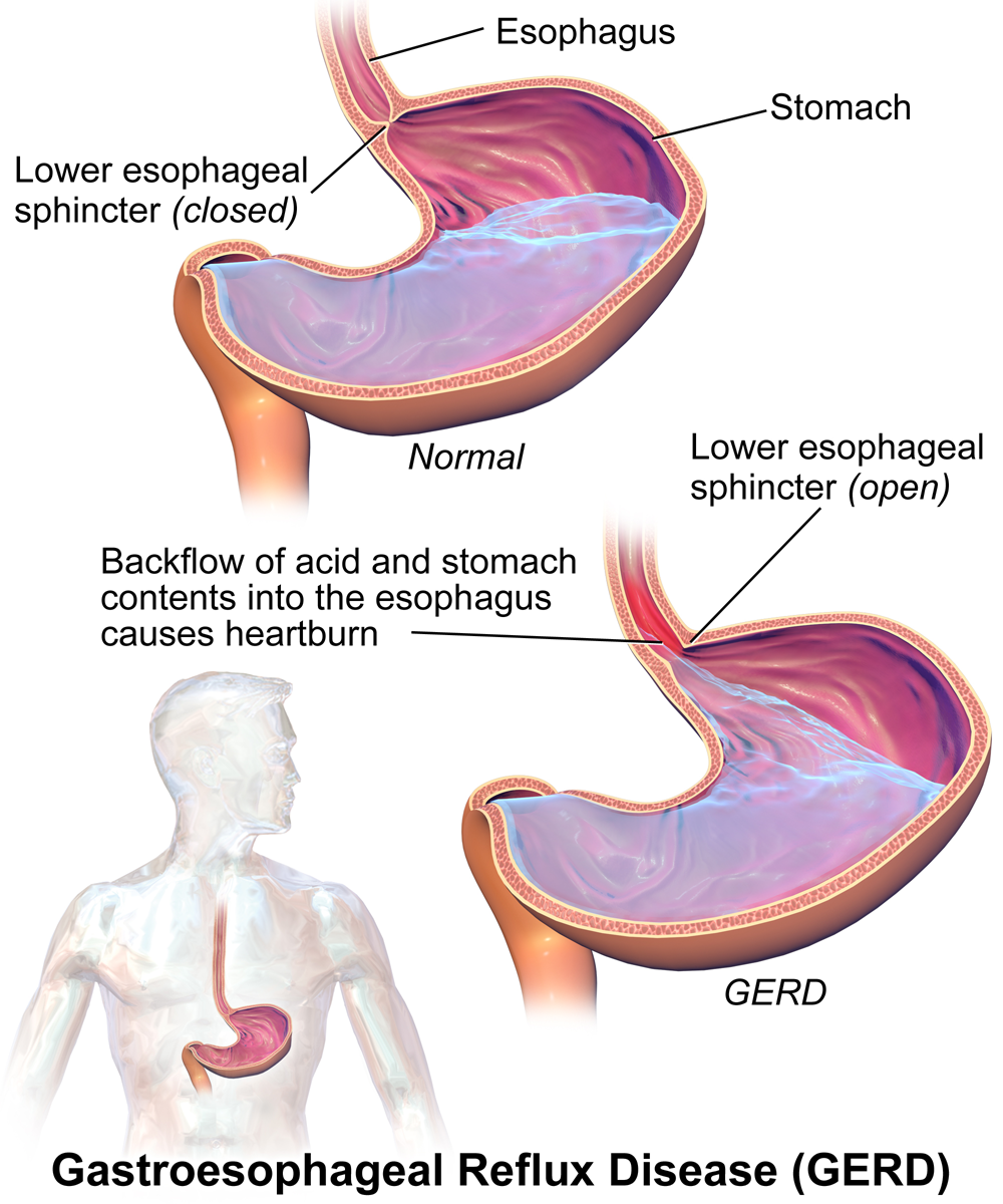 Gastroesophageal Reflux Disease Food List