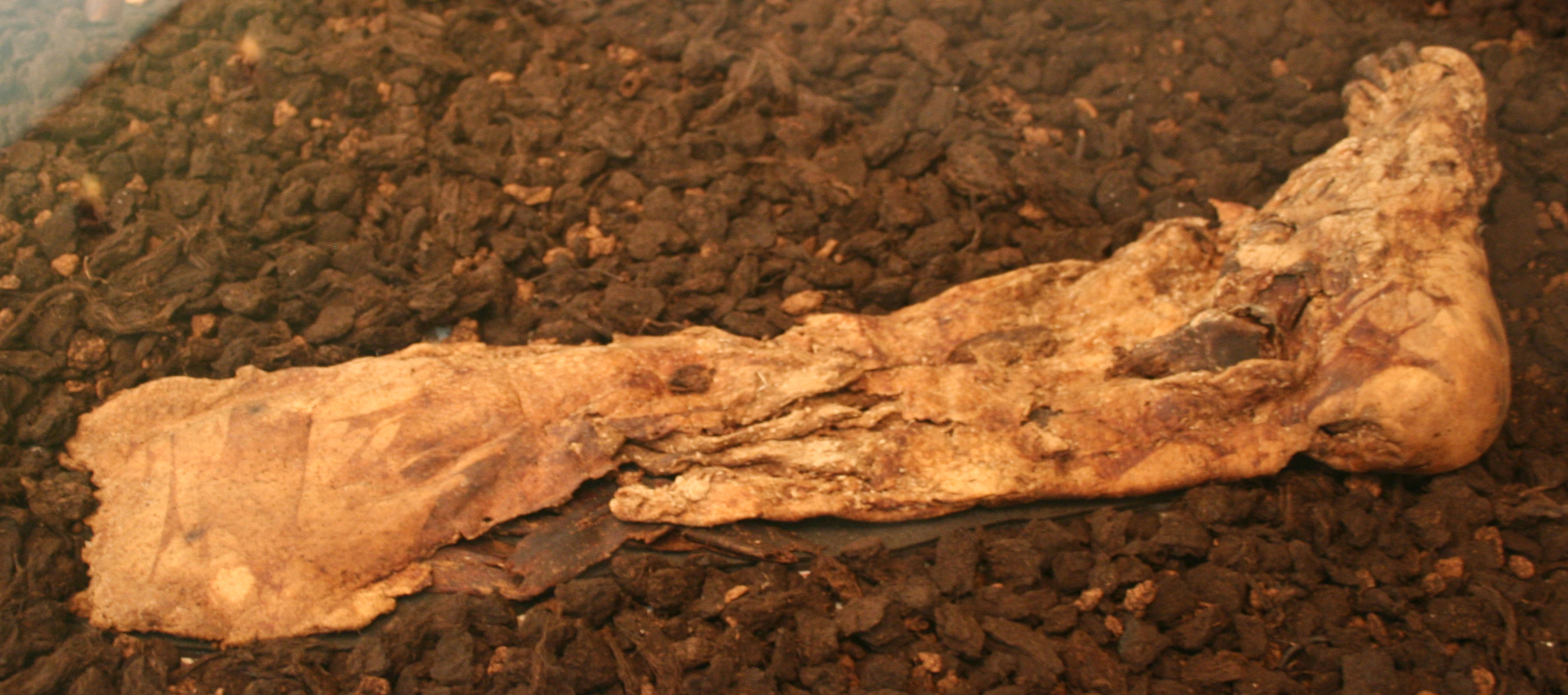 File Lindow Man 02 on body sections