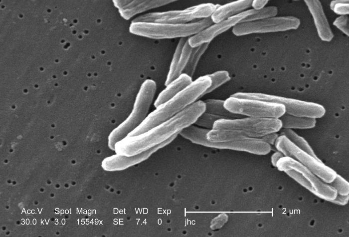 Mycobacterium tuberculosis 8438 lores