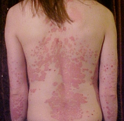 A Case of Psoriasis Vulgaris Complicated with an HIV Infection 3
