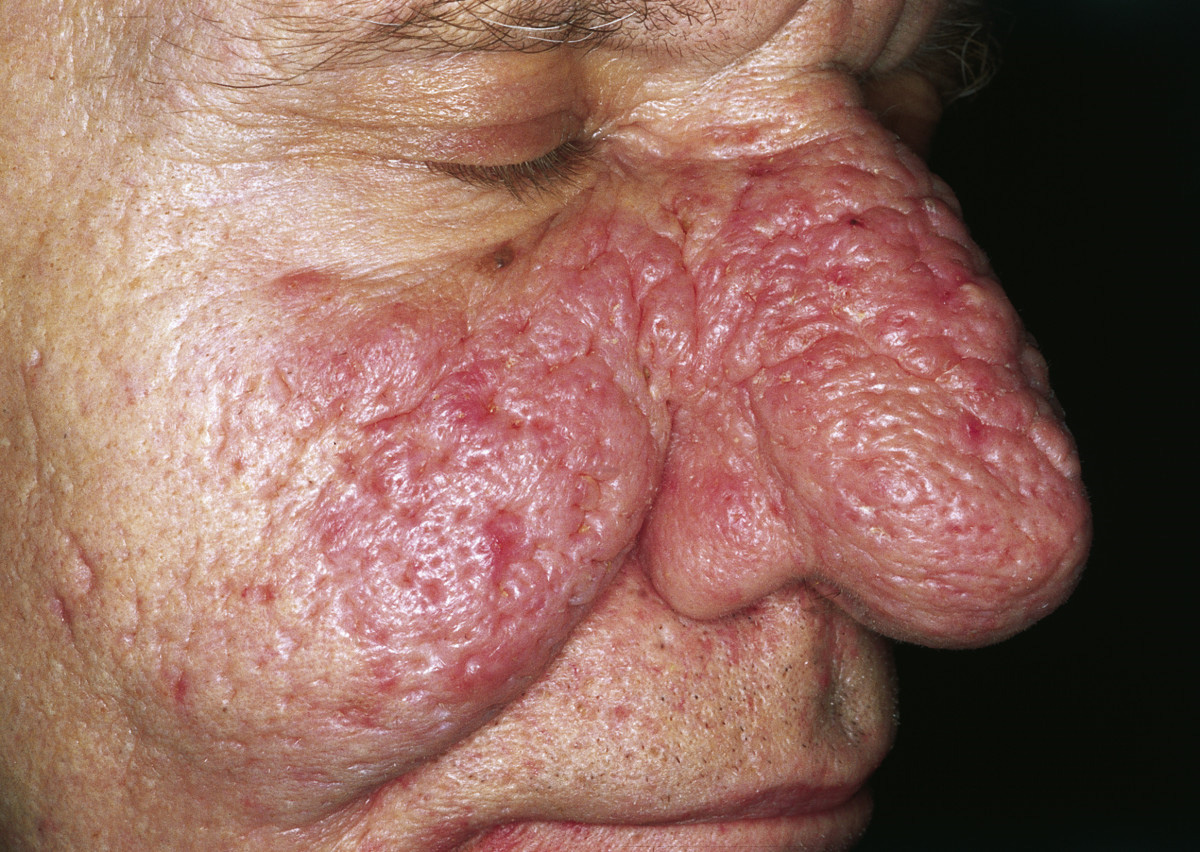 File:Rhinophyma 01.jpg - Wikimedia Commons