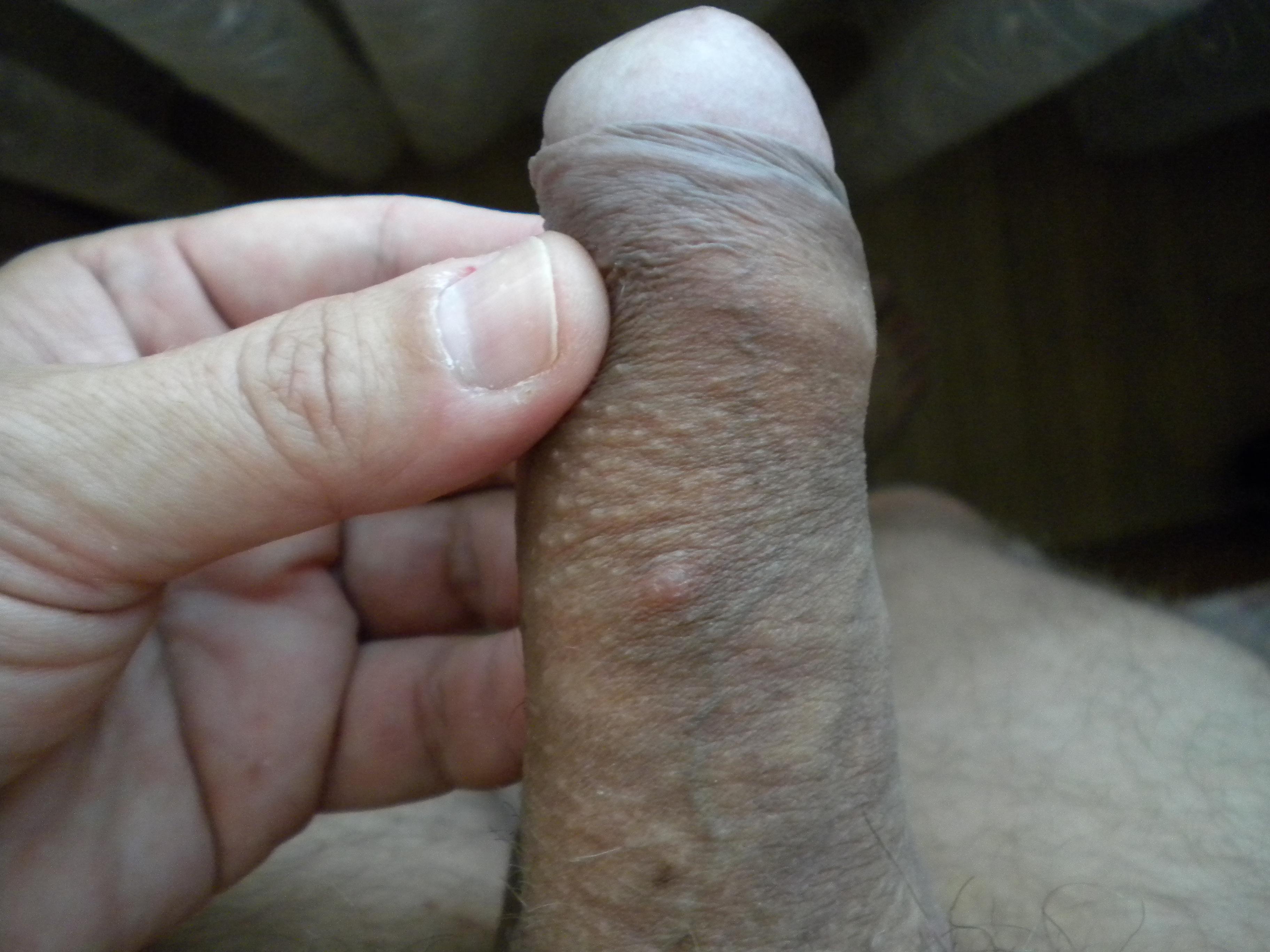 Penis Fotos 43