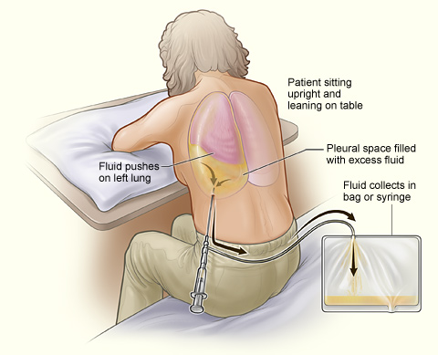 The illustration shows a person having thoracentesis. The person sits upright and leans on a table. Excess fluid from the pleural space is drained into a bag. Thoracentesis.jpg