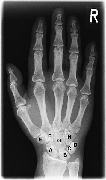 Область лучезапястного сустава ортопедия.болезни суставов