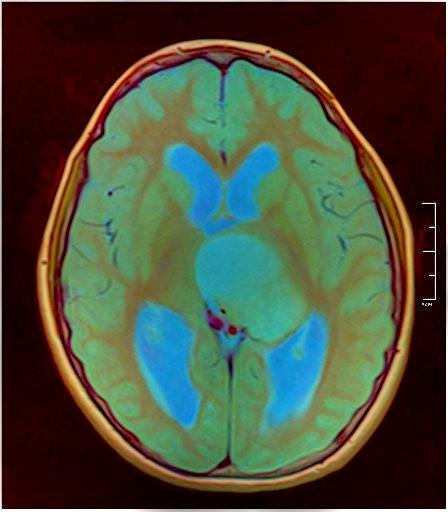 Brain MRI 0015 09.jpg